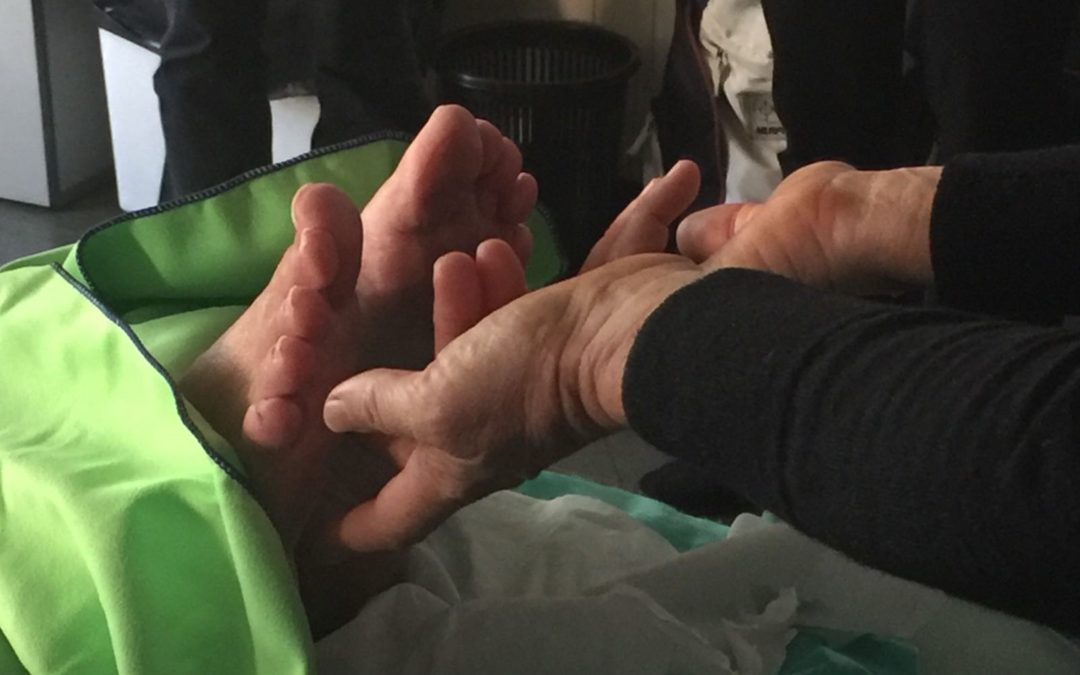 Lymphedema Management in the Massage Community